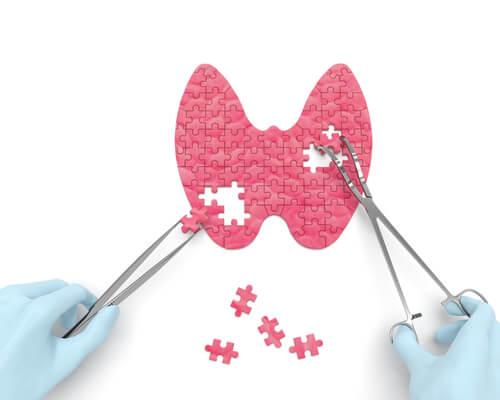 16 señales de que padeces hipotiroidismo