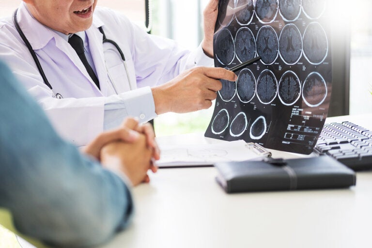 8 advertencias de un infarto cerebral
