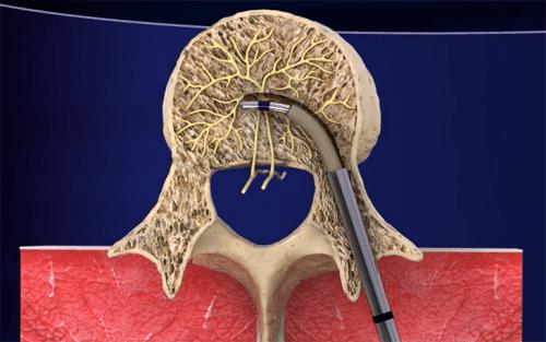 Intracept©: el nuevo tratamiento para acabar con la lumbalgia crónica