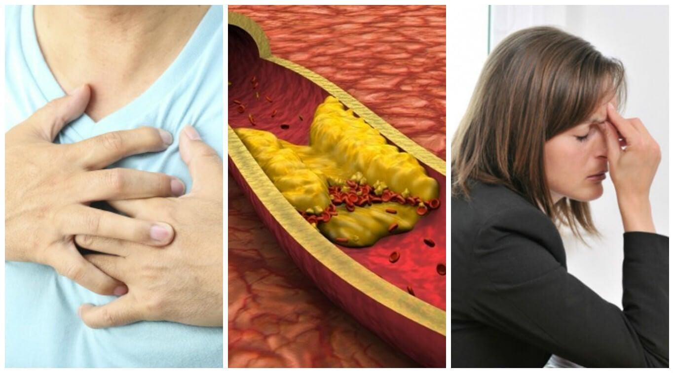 10 síntomas de colesterol alto que no debes ignorar