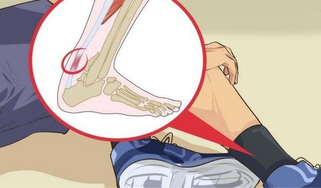 5 remedios contra la tendinitis en el talón de Aquiles — Mejor con Salud dd66eaeb94a6