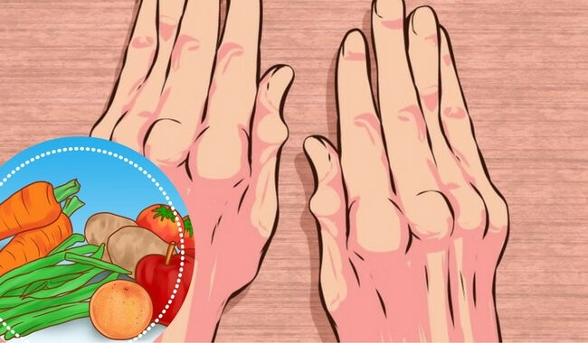 5 sencillos alimentos que debes incluir en tu desayuno si sufres artritis