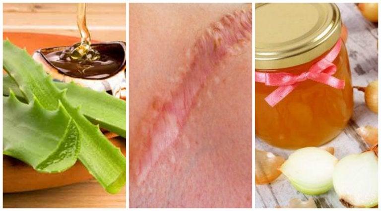 6 soluciones naturales para disminuir el aspecto de las cicatrices