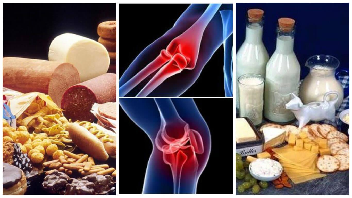 8 alimentos que debes evitar si tienes problemas en las articulaciones