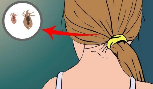 Cómo combatir naturalmente los piojos