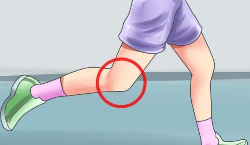 Síndrome de Sinding rodilla