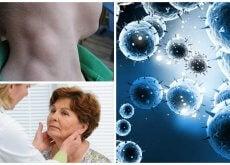 Linfoma, un cáncer silencioso que puede tratarse con éxito si se detecta a tiempo