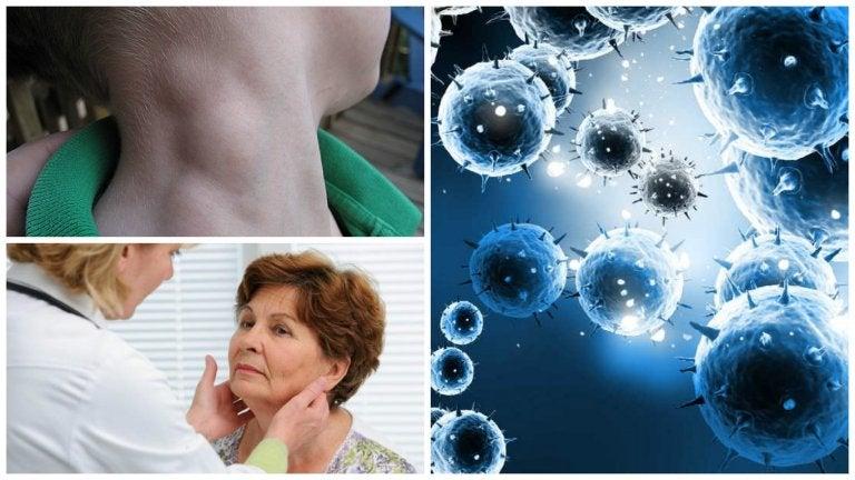 Linfoma, un tipo de cáncer que puede tratarse con éxito si se detecta a tiempo