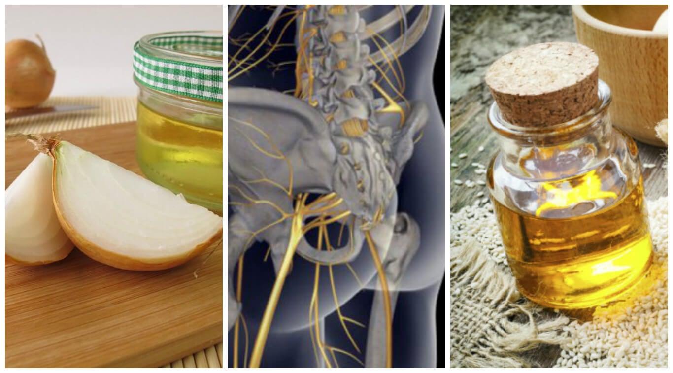 Descubre 6 remedios naturales para aliviar la ciática