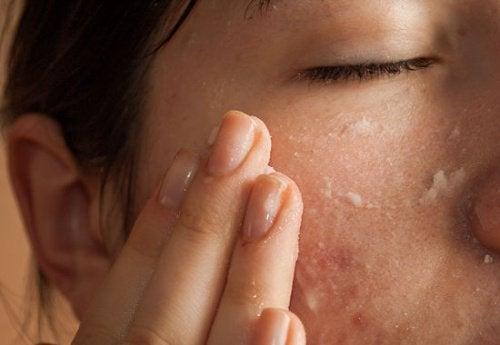 Puedes usar el aceite de almendras para cuidar de tu piel