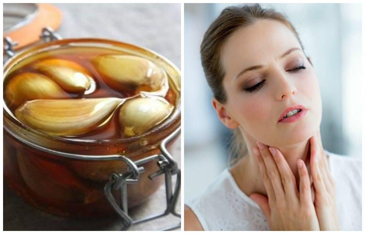 Remedio a base de antibióticos naturales para aliviar el dolor de garganta