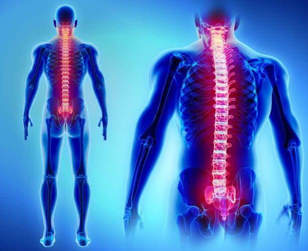 recreación digital de columna vertebral en hiperreflexia autónoma.