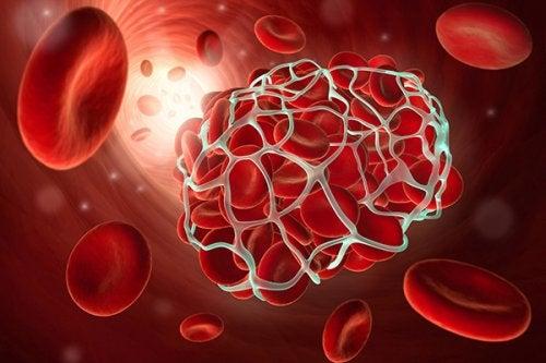 9 alimentos que debes incluir en tu dieta para prevenir trombosis y embolias