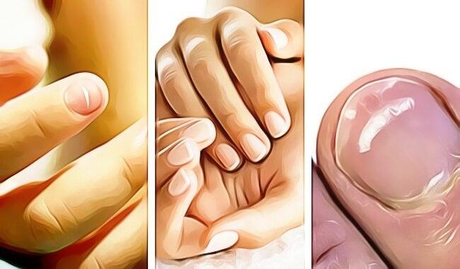 5 señales que te dan las uñas de las manos de que algo va mal en tu salud