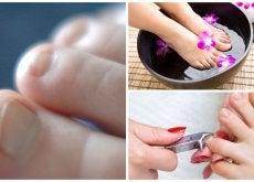 7 cosas sobre los hongos en las uñas que debes saber