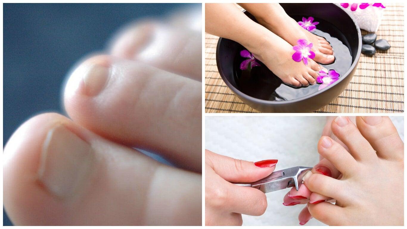 Cuidados en los pies: cortar las uñas y baños con agua.