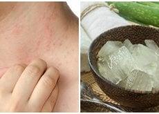 7 soluciones efectivas para aliviar la alergia por el calor