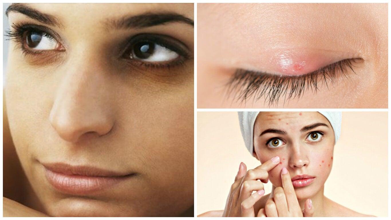 8 consecuencias que puedes sufrir por no quitar el maquillaje de tu piel
