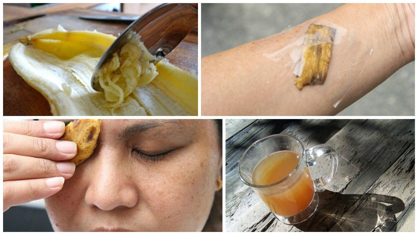 8 usos medicinales de la cáscara de banana