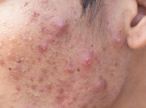 Prezzo di acne di elos