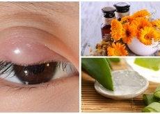 Cómo aliviar los orzuelos con estos 7 remedios naturales