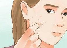 Como diferenciar los distintos tipos de acne en la cara