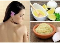 Dile adiós a las espinillas de la espalda con este remedio de ajo y limón
