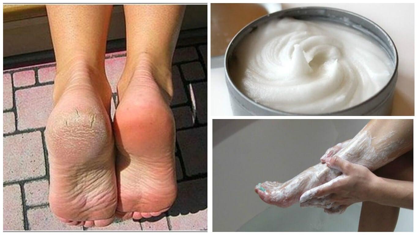 Remedio casero para eliminar callos y hongos de los pies
