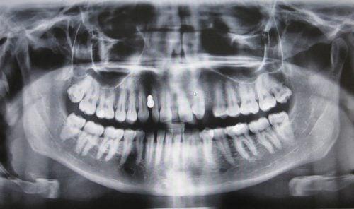 Fármaco para el alzhéimer podría utilizarse para regenerar los dientes naturalmente