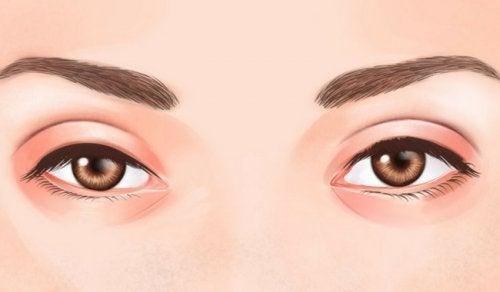 Lo que dicen tus ojos sobre tu salud