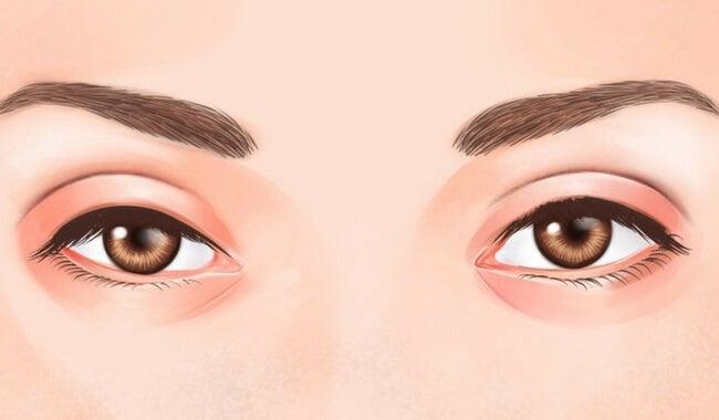 Lo que dicen tus ojos sobre tu salud en general