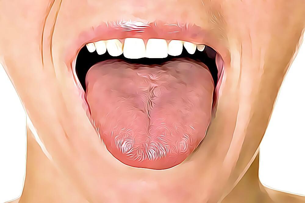 Descubre lo que dice tu lengua sobre tu salud