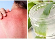 Prepara un gel refrescante de aloe vera para calmar las quemaduras solares
