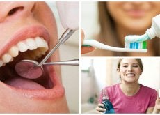 Quieres evitar la caries dental Aplica estas 8 recomendaciones