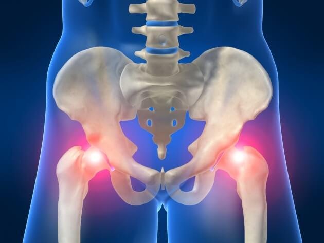 dolor insoportable en la ingle de la cadera