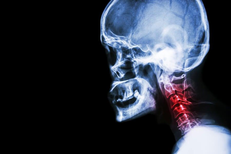 Espondilosis cervical: síntomas y tratamientos naturales