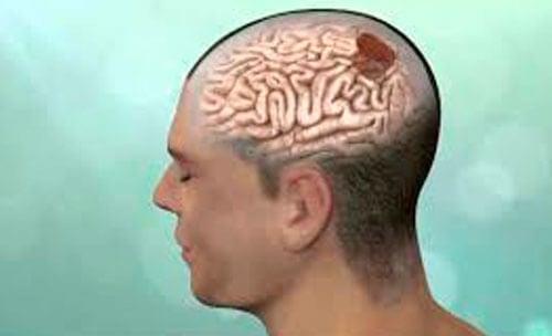 Científicos reprograman la salmonella para que acabe con tumores cerebrales