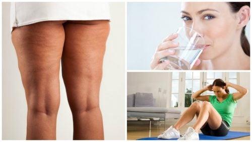 6 cosas que debes hacer antes de iniciar un tratamiento contra la celulitis