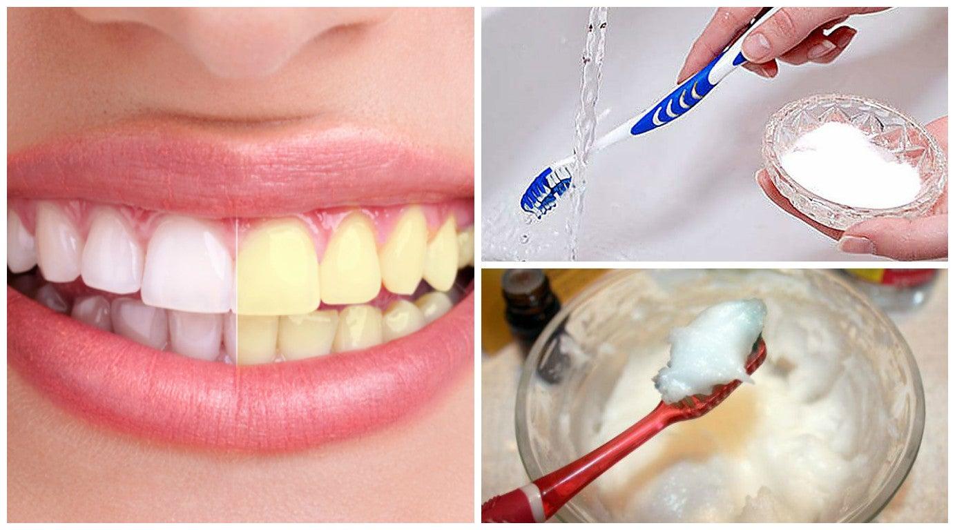 6 remedios con bicarbonato de sodio para blanquear tus dientes