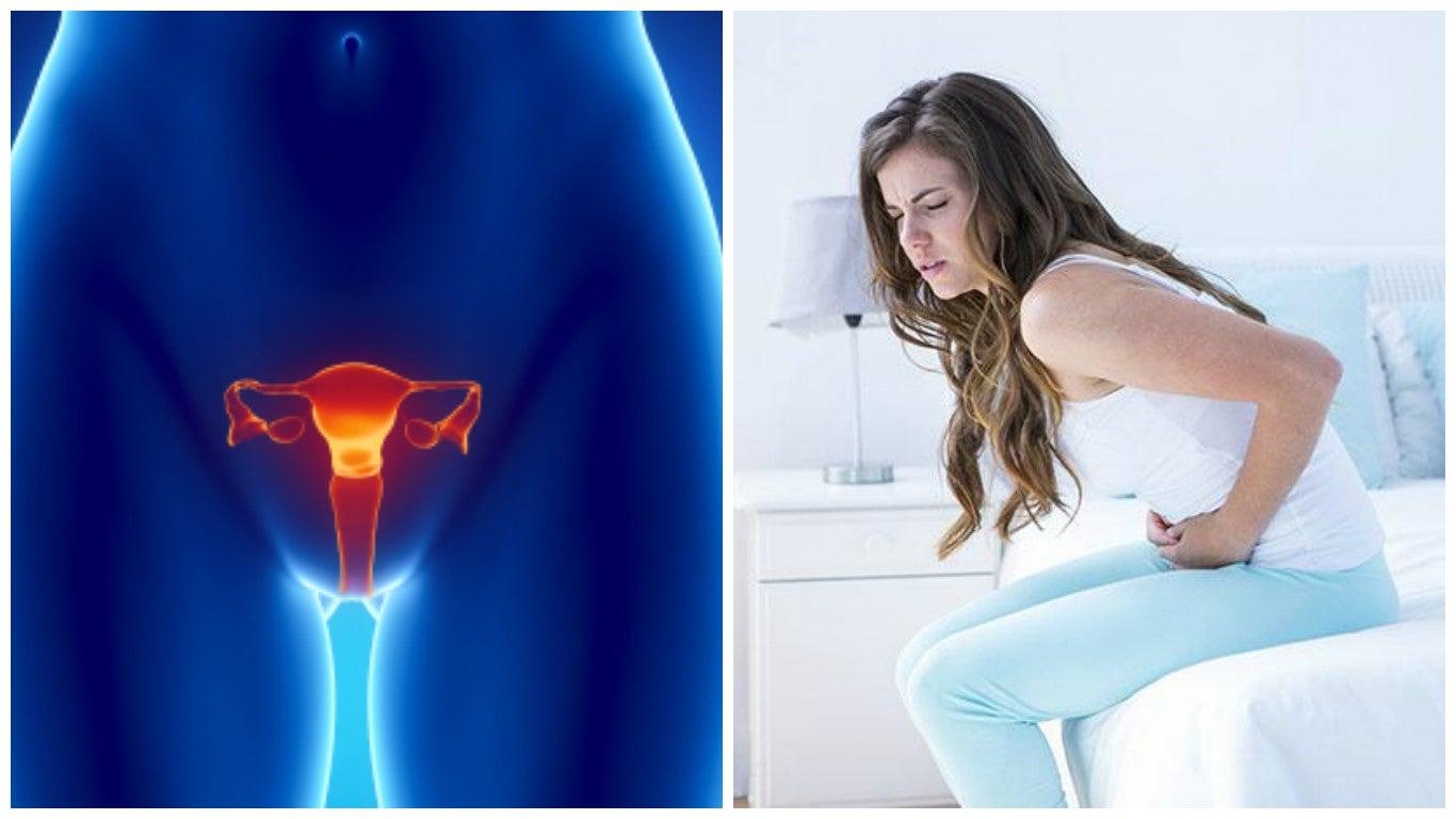 7 datos importantes del cáncer de ovario que debes saber
