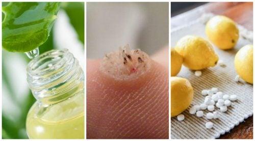 Elimina las verrugas de tu cuerpo con estos 6 eficaces remedios
