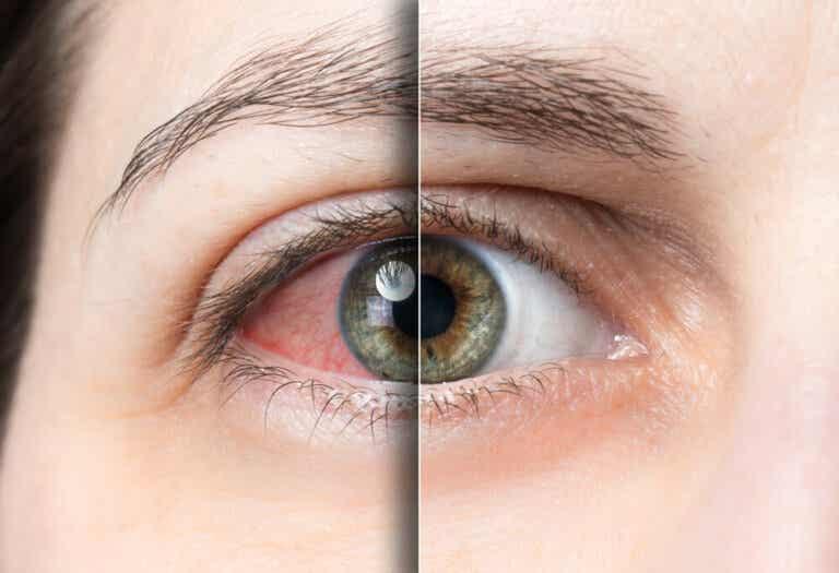Desprendimiento de retina qué es, causas y cómo evitarlo