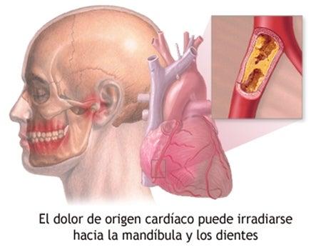 el dolor mandibular puede producirse por distintas causas