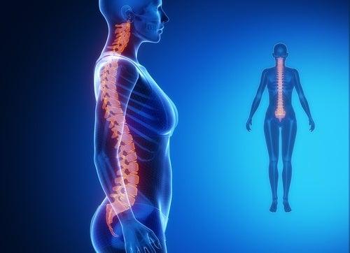 Enfermedad degenerativa espalda