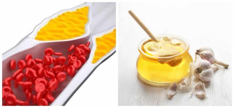 Cómo preparar un jarabe para reducir el colesterol y desinflamar las articulaciones