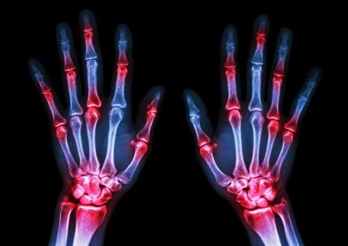 5 datos de la artritis reumatoide que debes conocer
