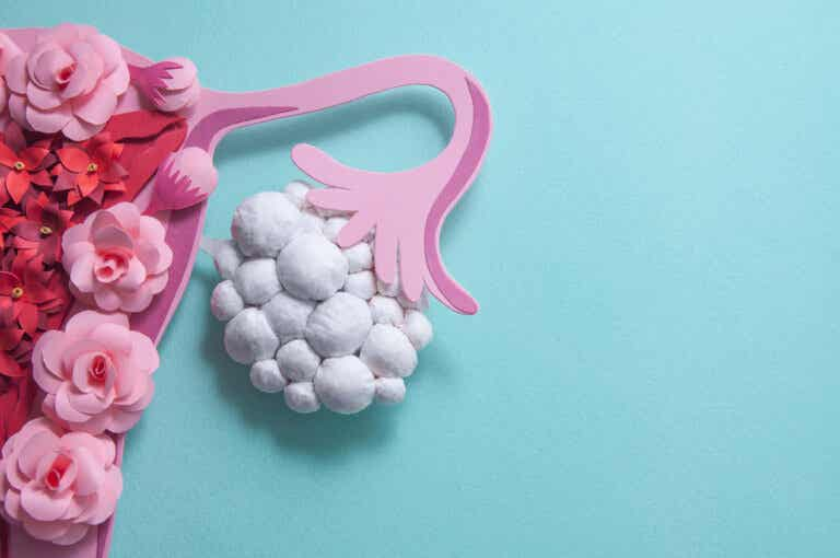 Síntomas poco conocidos sobre el síndrome del ovario poliquístico (SOP)