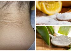 5 tratamientos cosméticos para aclarar el cuello oscuro