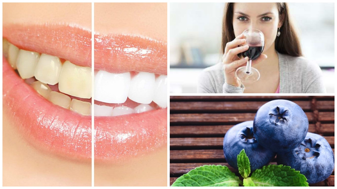 7 alimentos que pueden manchar tus dientes si los comes en exceso