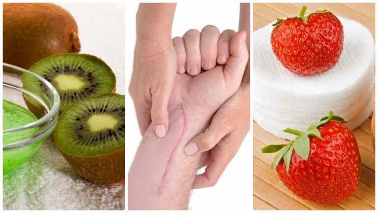5 mascarillas de frutas  para acelerar la cicatrización de tu piel